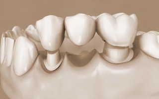При протезировании зубов предоставляется вычет